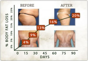 Garcinia Cambogia the results to expect